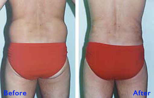 Liposuction Flanks